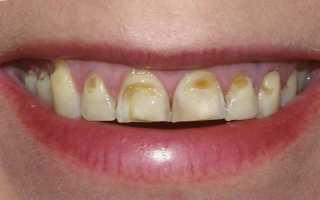 Эрозия зубов причины