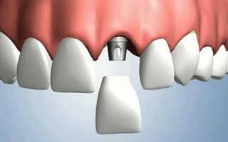 Установка имплантанта зуба технология