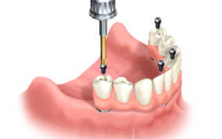 В каких случаях ставят штифт в зуб