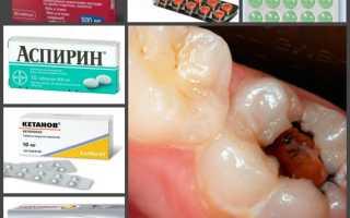 Зубная боль что делать в домашних условиях