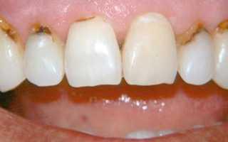 Пришеечный кариес у основания зуба