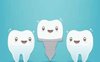 Удаление импланта зуба последствия