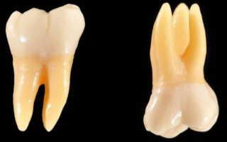 Какие зубы называют молярами и премолярами