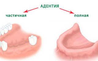 Полная адентия зубов
