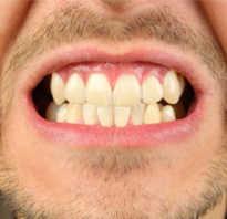 Чем лечить язвочки во рту у взрослого
