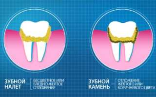 Чем чистить зубные протезы пластиковые от темного налета