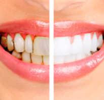 Как очистить зубной камень в домашних условиях