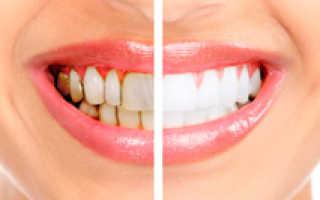 Чистка зубного камня в домашних условиях