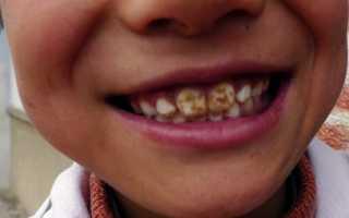 Флюоризация зубов это