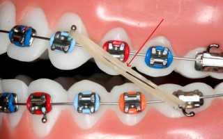 Резинки для брекетов помогут быстрее исправить дефекты