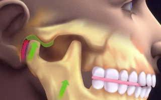 Как вывихнуть челюсть