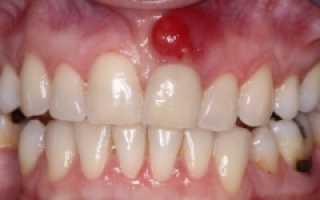 Свищ молочного зуба