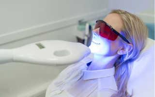 Щадящее отбеливание зубов
