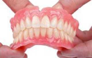 Вставные зубы виды
