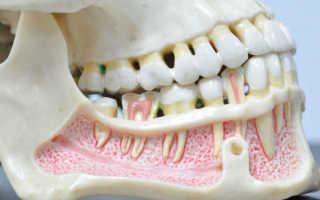 Остеомиелит нижней и верхней челюсти