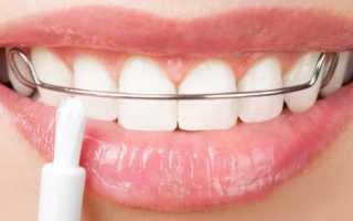 Ретейнеры для зубов после брекетов