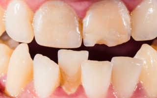 Кривые зубы у детей и взрослых