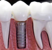 Как вставить зубные импланты