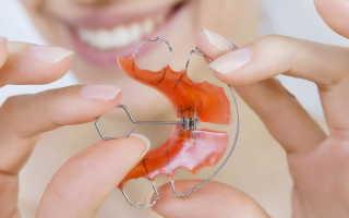 Пластинки для коррекции зубов у взрослых и детей