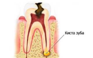 Лечится ли киста зуба