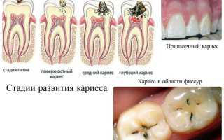 Как предотвратить кариес зубов