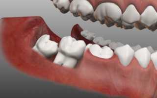 Дистопированного ретенированного зуб
