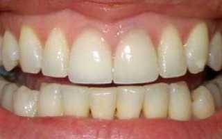 Отбеливание зубов системой Zoom 3