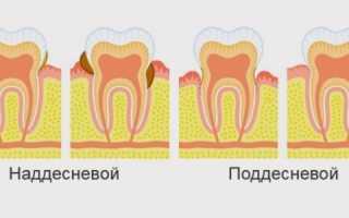 Снять зубной камень в домашних условиях