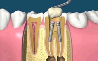 Штифт в зуб