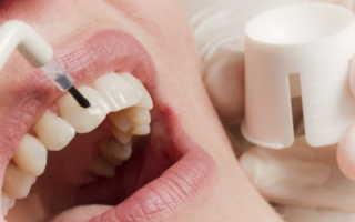 Методы и этапы фторирования зубов