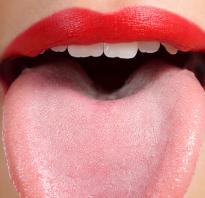 Налет на языке у взрослых