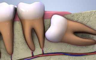 Обязательно ли удалять зубы мудрости