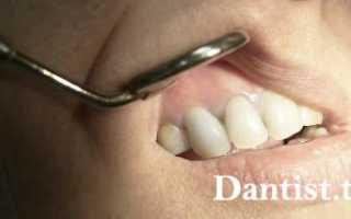 Киста переднего зуба