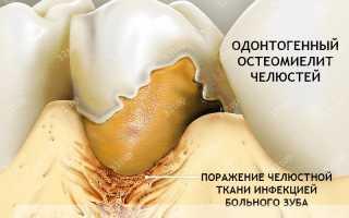 Остеомиелит зуба симптомы
