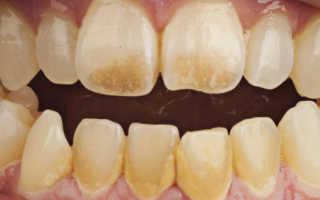 Как удалить налет с зубов в домашних условиях