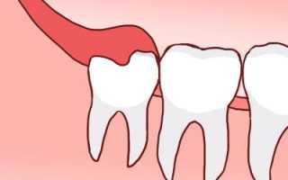 Режется зуб мудрости и болит десна чем обезболить