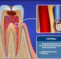 Чувствительность зубов лечение народными средствами