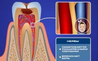 Чувствительность зубов как снять в домашних условиях