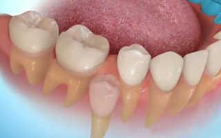 Веретенников рост зубов