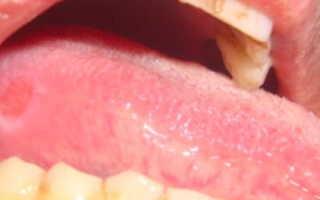 Прикусила язык образовалась язвочка чем лечить