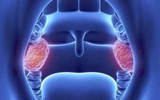 Гланды и миндалины в горле