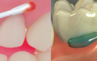 Местное обезболивание в стоматологии