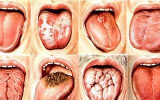 Белый налет на языке у взрослого как лечить