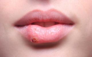 Болезни губ у взрослых и детей