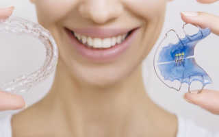 Как подкручивать пластинку для зубов
