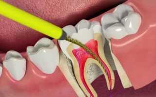 Сколько живет зуб без нерва