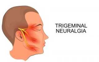 Заболевания тройничного нерва симптомы лечение