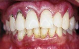 Десна болит между зубами