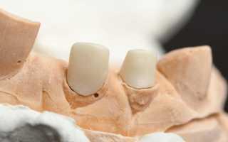 Культевая вкладка для зубов под коронку
