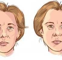 Чем лечить лицевой нерв